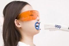 歯の黄ばみを取り除き、白く輝くきれいな歯にしていきます。